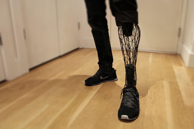 L' impression 3D au service de la santé