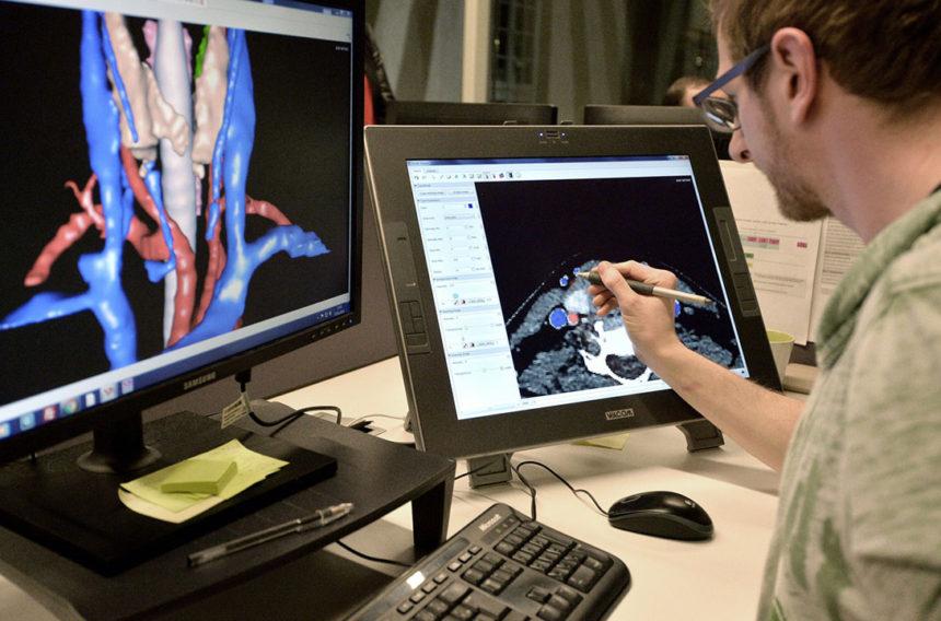 La technologie 3D pour opérer l'inopérable